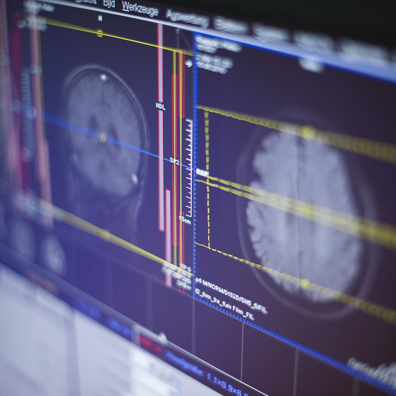 Kernspinzentrum - Europa-Passage - Schmerztherapie
